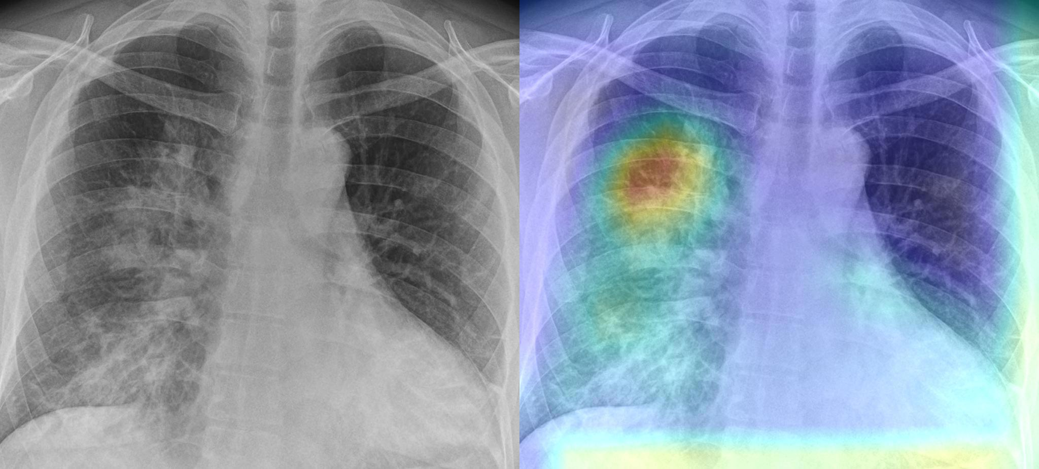 behold.ai's red dot® AI algorithm identifies chest X-rays ...